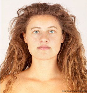 Facial reconstruction image